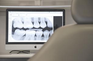 Studio Dentistico Poliambulatorio Marchesi - Radiologia Dentale