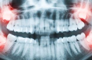 Studio Dentistico Poliambulatorio Marchesi - Chirurgia