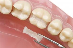 Studio Dentistico Poliambulatorio Marchesi - Conservativa