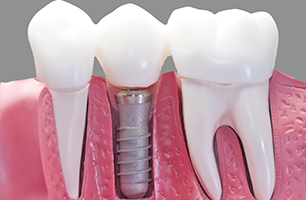 Studio Dentistico Poliambulatorio Marchesi - Implantologia