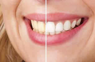 Studio Dentistico Poliambulatorio Marchesi - Sbiancamento dentale