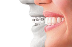 Studio Dentistico Poliambulatorio Marchesi - Ortodonzia