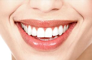 Studio Dentistico Poliambulatorio Marchesi - Estetica Dentale