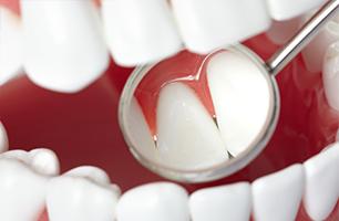Studio Dentistico Poliambulatorio Marchesi - Parodontologia