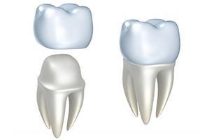 Studio Dentistico Poliambulatorio Marchesi - Protesi Fissa